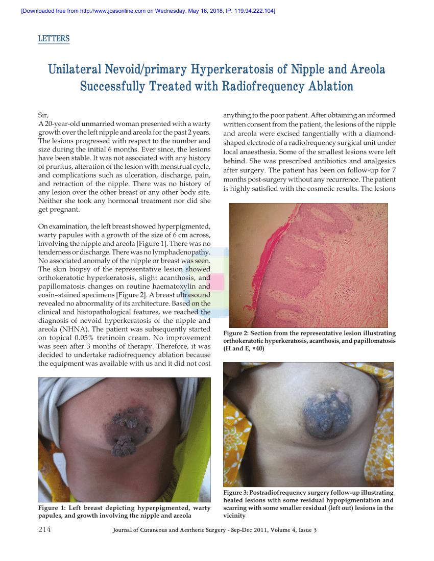 oxiuros sintomas portugues periode dincubation papillomavirus chez lhomme