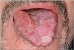 hpv virus ferfiaknal