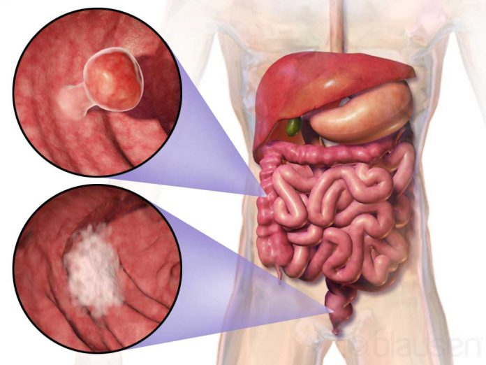 cancer colon simptome si tratament