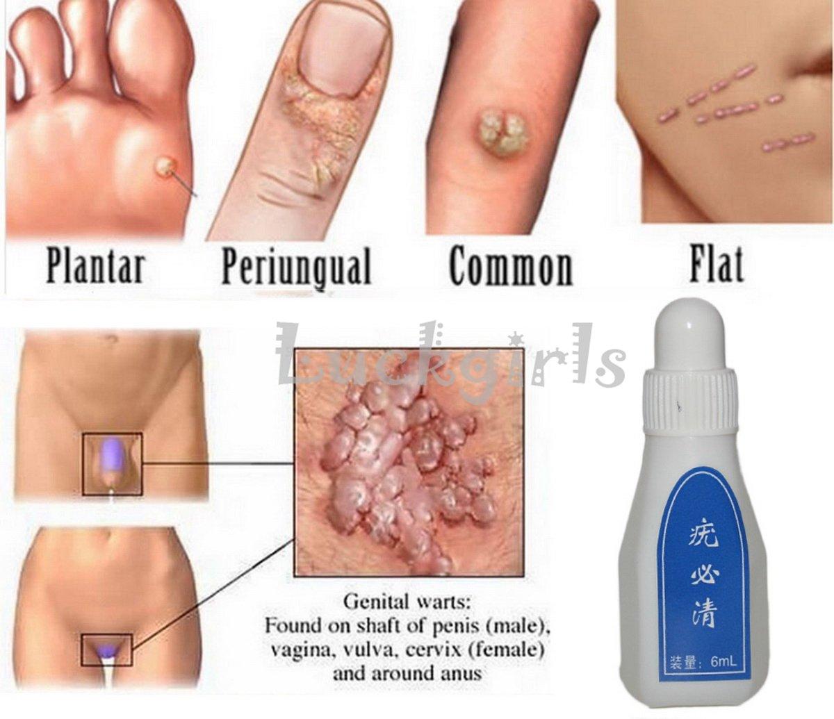 warts skin tags)