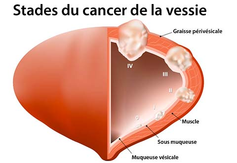 cancer maligne vessie)