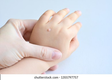 warts on hands baby