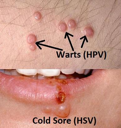 herpes vs hpv