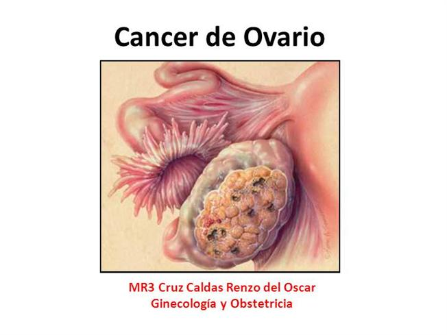 Cancerul ovarian - teste diagnostice