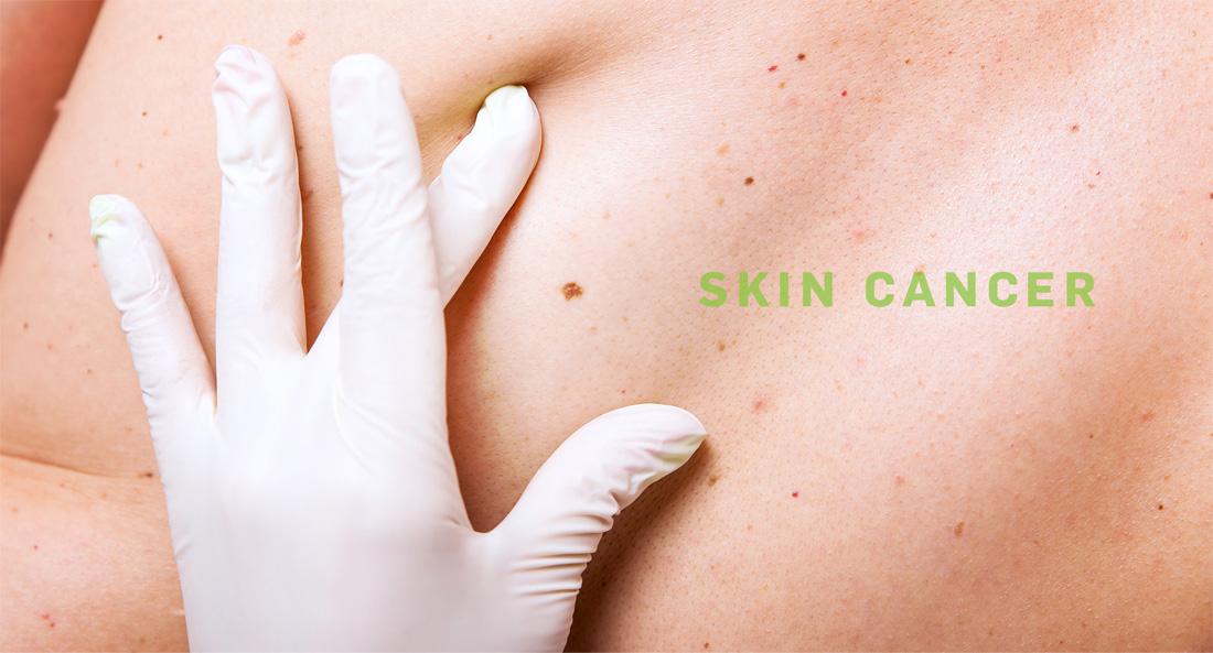 cancer de piele cu celule scuamoase)