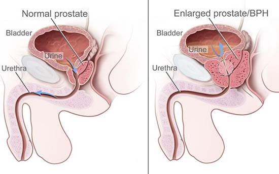 Cauze şi factori de risc în cancerul de prostată