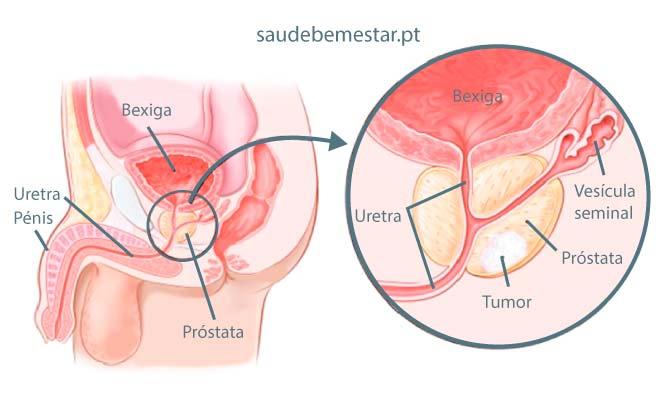 cancer de prostata grau 7 tem cura