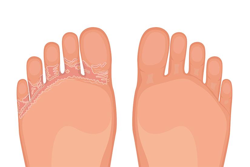 Cum recunoşti şi tratezi ciuperca piciorului