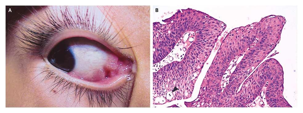 conjunctival viral papilloma