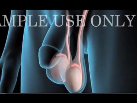 testicular cancer kya hai)