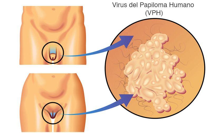 que es cancer cervical)