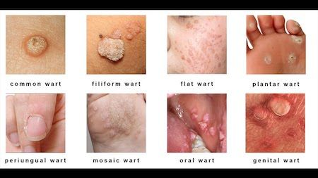 hpv causes flat warts