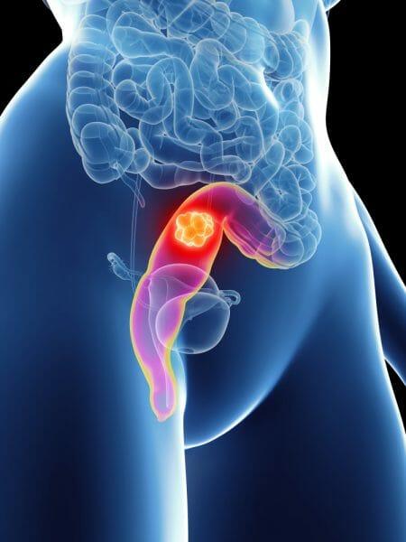 ombladon 5 4 3 2 gusanos intestinales oxiuros