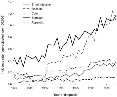 neuroendocrine cancer age