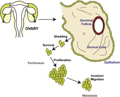 epithelial ovarian cancer)