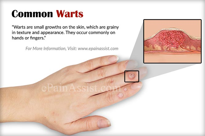 are warts on hands contagious by touch