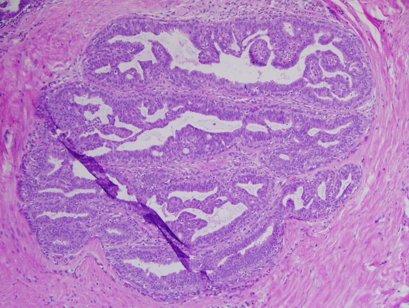 malignant ductal papilloma