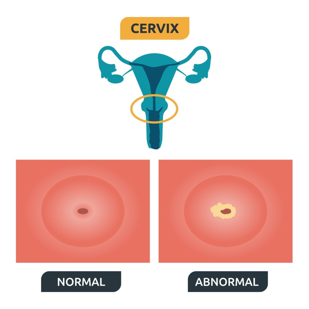 precancerous cells no hpv