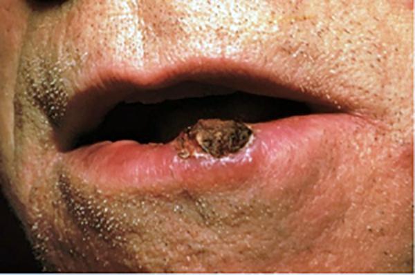 hpv labbro inferiore)