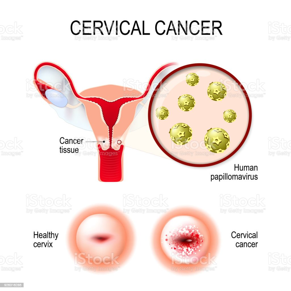 human papillomaviruses and their role in cervical cancer