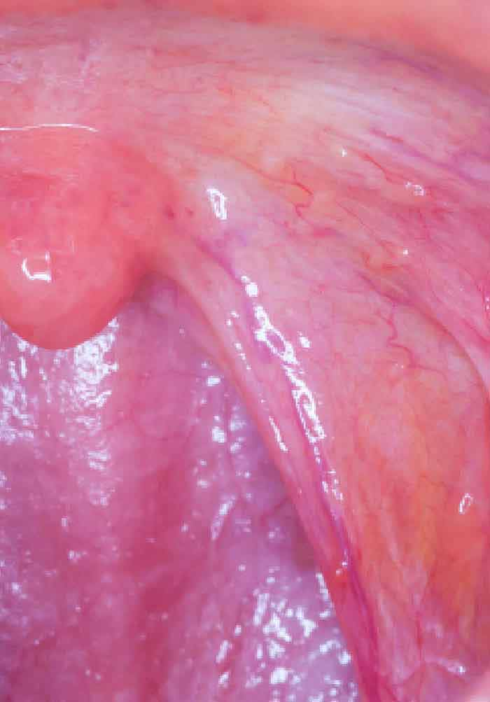 hpv squamous cell carcinoma throat)