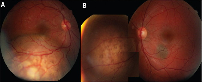 metastatic cancer eye