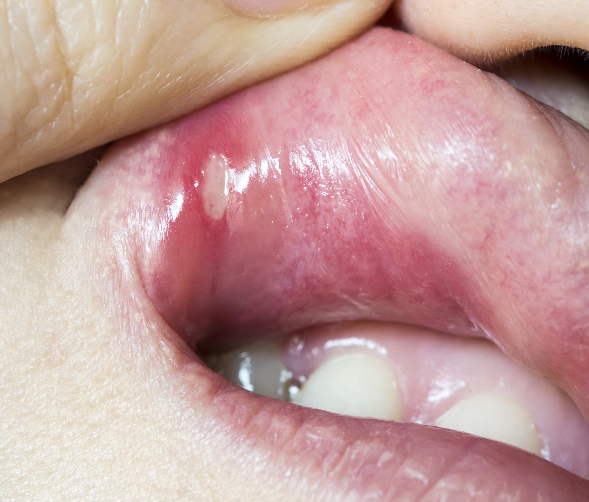 hpv cancer in mouth)