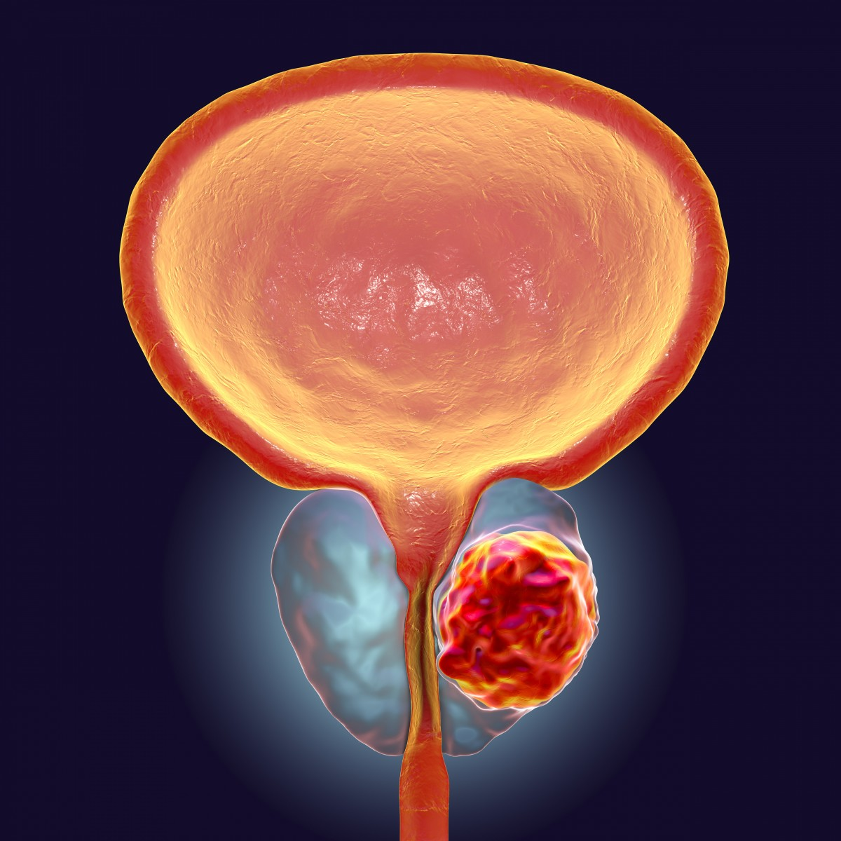 Prostatita hepatrombin g