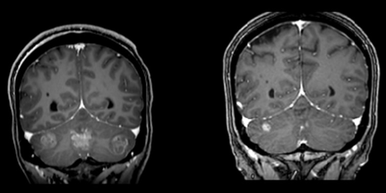 metastatic cancer from lung to brain)