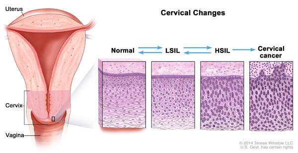 precancerous cells cervix not hpv)