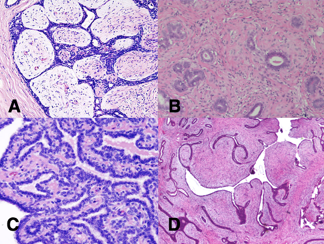 papilloma breast tumor paraziti dex