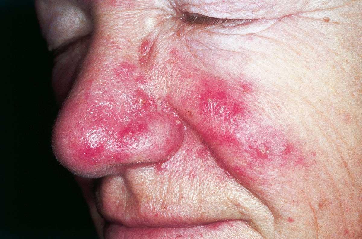 Demodex Eye - Tratament