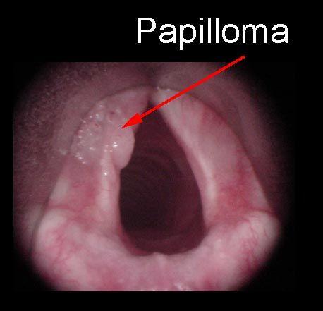 papillomas on larynx papillary urothelial hyperplasia
