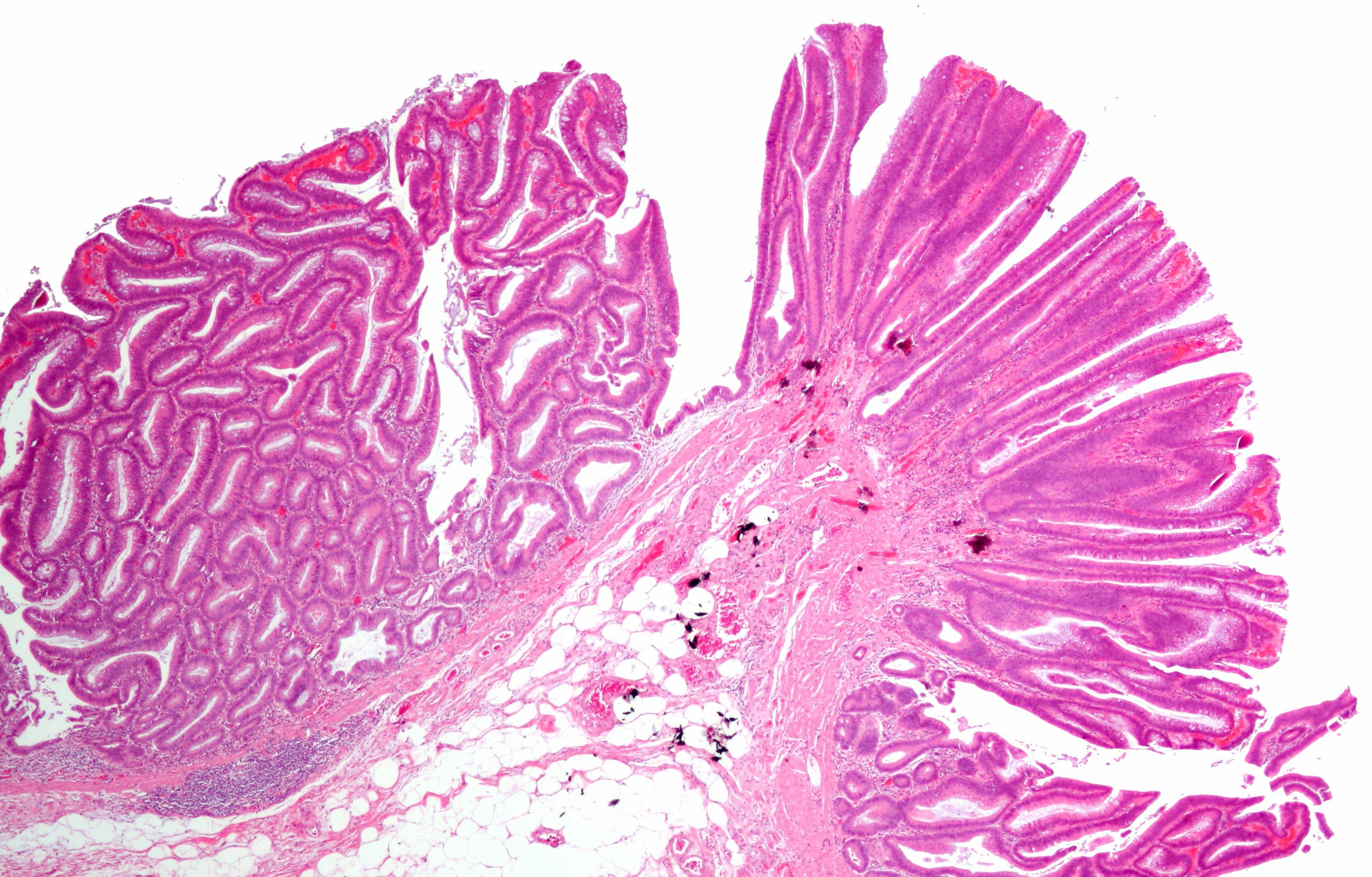 colorectal cancer vertaling)