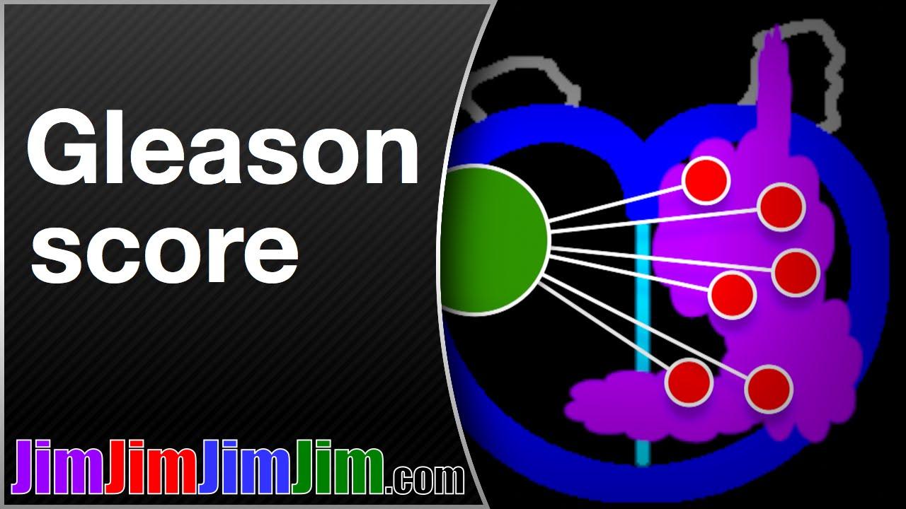 cancer de prostata gleason 6 3+3 anemie 9g