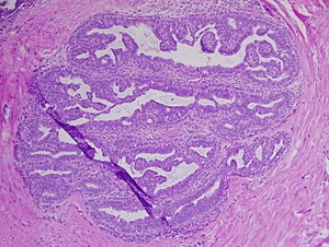 intraductal papilloma be)