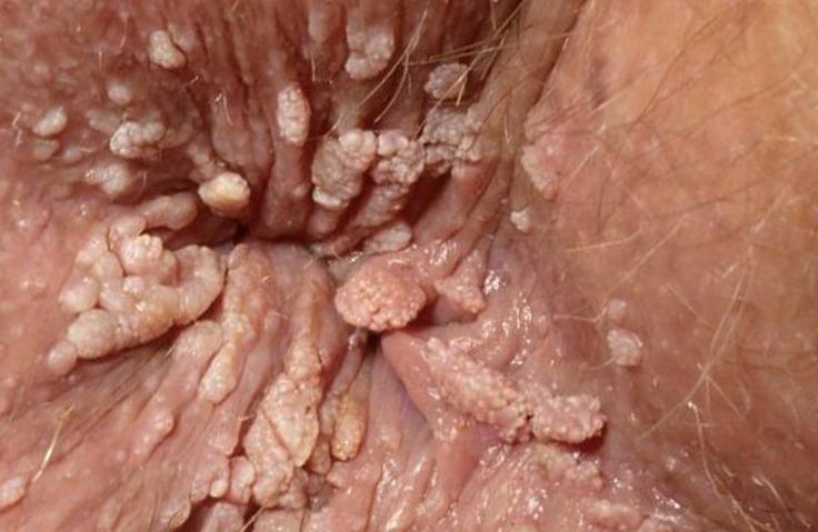 papilloma ano quitar papiloma en boca