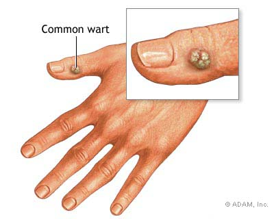 sintomi papilloma virus nelle donne zentel dosis oxiuros
