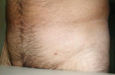 Tratament laser pentru condiloame perianale si veruci genitale