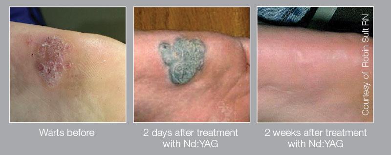 warts treatment laser