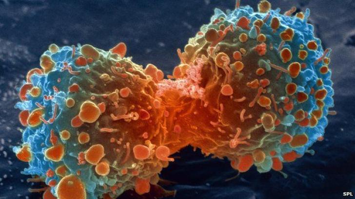 cancer pulmonar vindecat