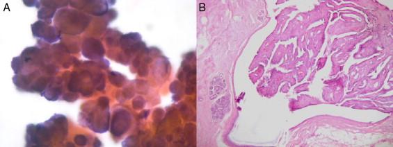 papiloma ductal en mama papilloma virus vaccino gratis