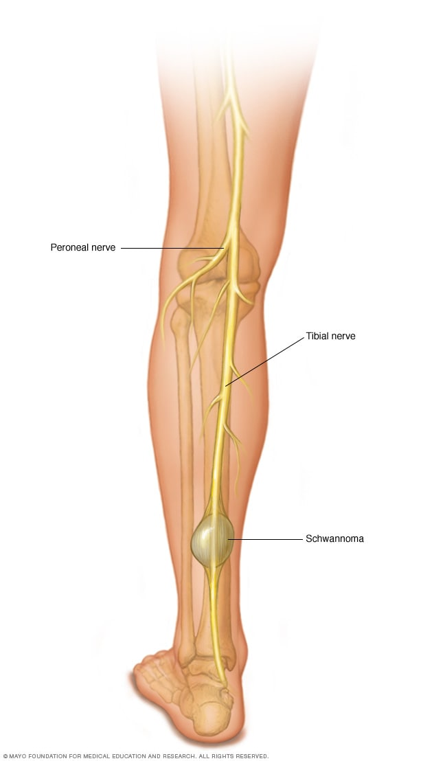 sarcoma cancer in leg)