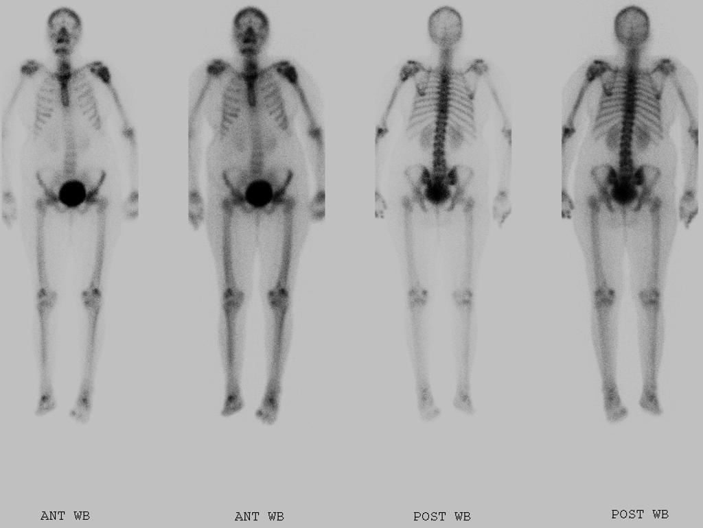 papillary thyroid cancer in bones)