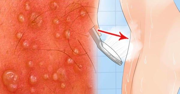 vestibular papillomatosis itchy