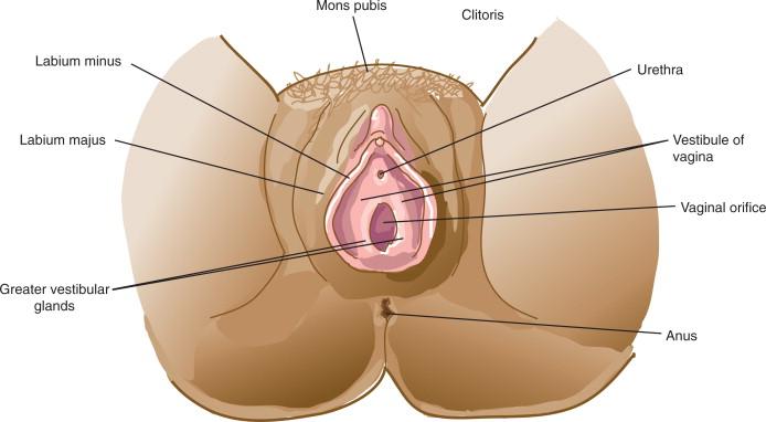 vestibular papillomatosis swelling