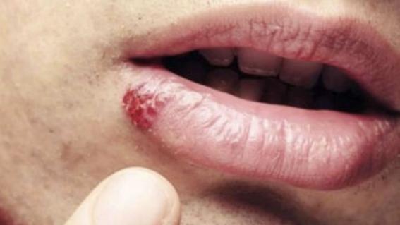 virus papiloma humano en el ano