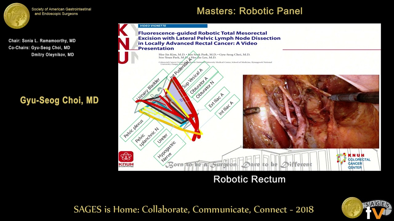 rectal cancer robotic surgery)