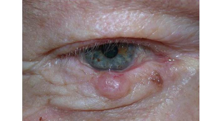 papilloma eye removal)