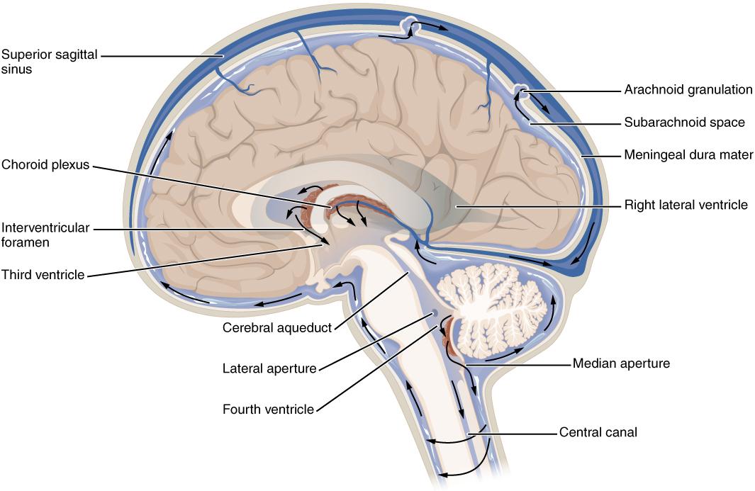 cancer cerebral fluid